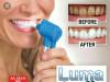 Izbjeljivac zuba ,aparat za poliranje zuba